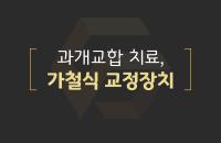 과개교합 치료, 가철식 교정장치_200331.png